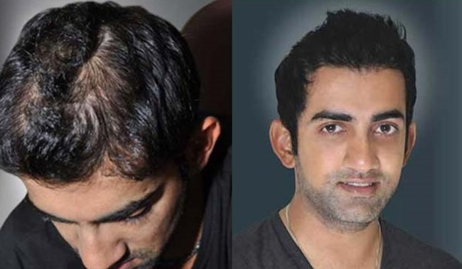 10 Cricketers who went for a hair transplant