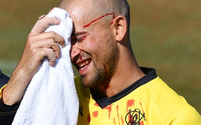 Australia star Ashton Agar bloodied by own brother in One-Day Cup